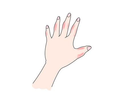 동상하고있는 손등 (왼손)