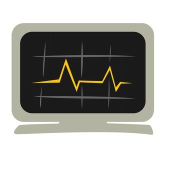 Electrocardiogram monitor