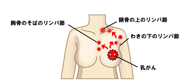 Breast cancer to lymph node metastasis