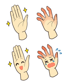 Slim hand and winter trouble