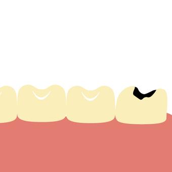 Tooth decay (back teeth / wisdom teeth)