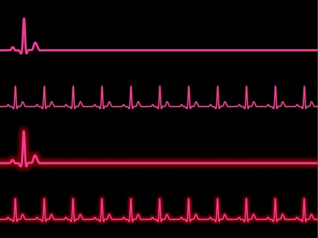 ECG pink
