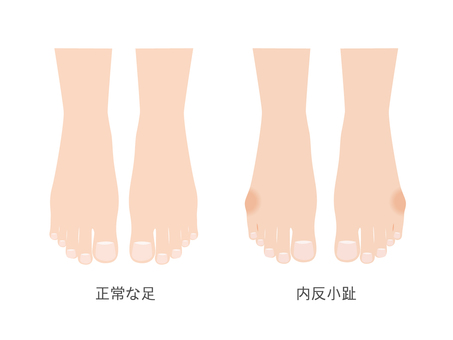 Anti-small toe