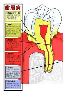 Explanation of periodontal disease①
