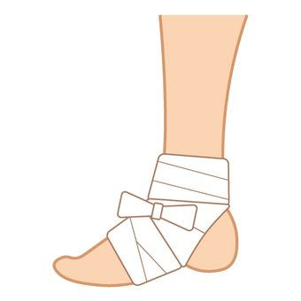 Image of injury (ankle)