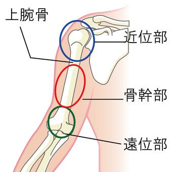 Name of upper arm bone