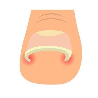 Wound nail