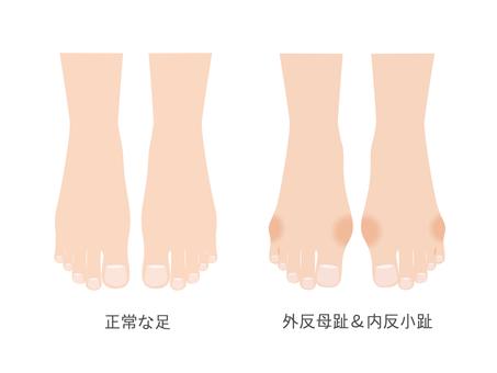 Anti-mother toe & inner anti-toe