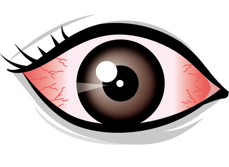 Red-eyed eyes