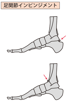 Ankle joint impingement