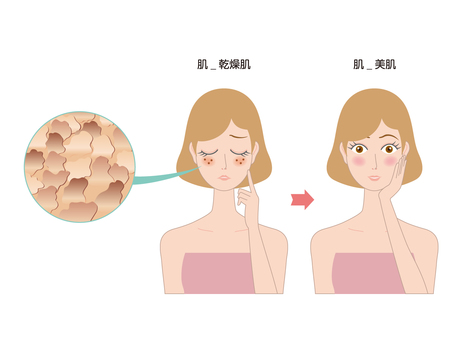 Dry skin illustration