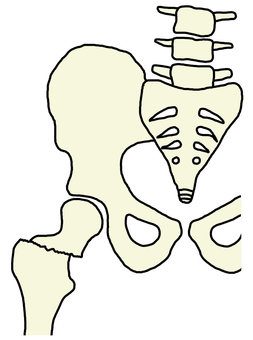 Femoral fracture of the femur