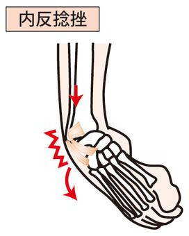 Varus sprain