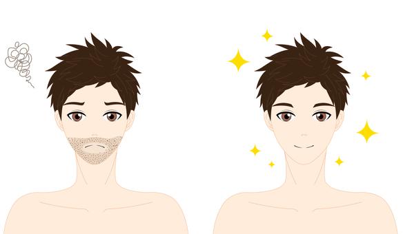 男性鬍鬚脫毛前後