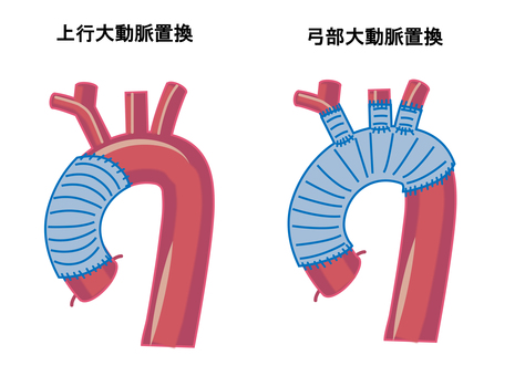 Two types of aortic dissection surgery