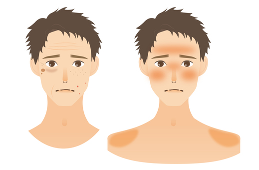 Skin trouble _ men
