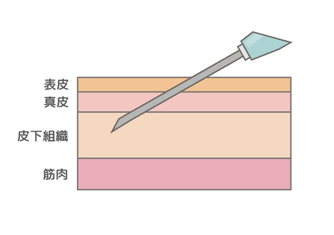 Subcutaneous injection map