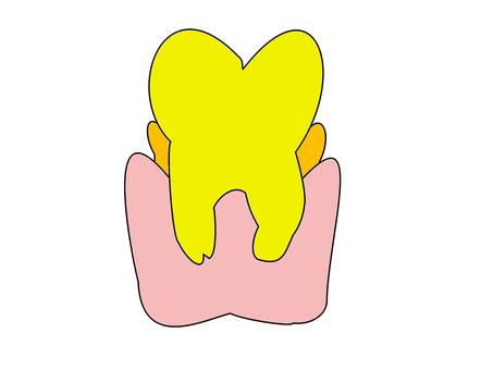 歯頚 부분의 치석 부착