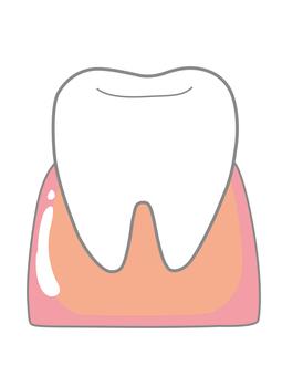 Teeth and gums a