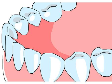 歯 jaw