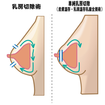 Mastectomy by breast cancer