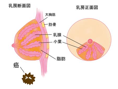 Breast chart