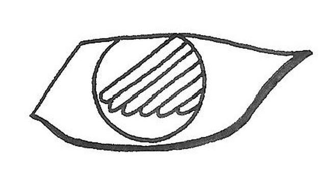 It is an eye.