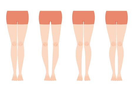Leg shape