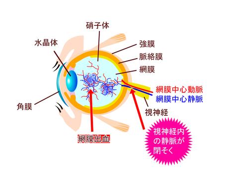 Central retinal vein occlusion