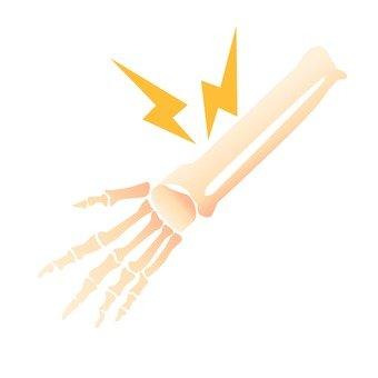 Wrist bone