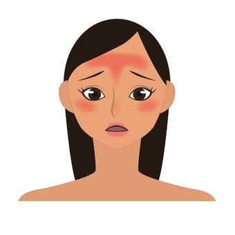 Skin trouble