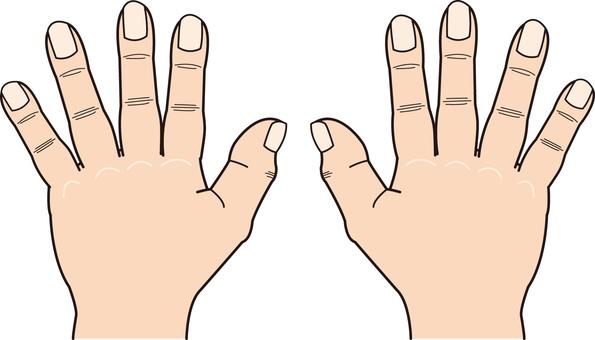 Hand series deformed hands of both hands