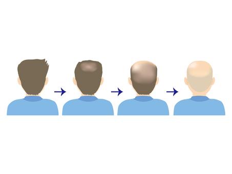Male · thin hair & hair loss D