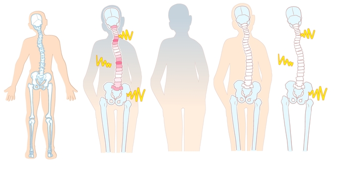 Body and spine and health
