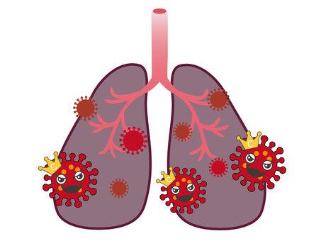 폐렴의 이미지 1