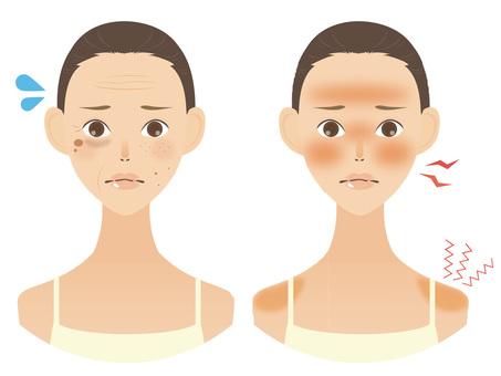 美容皮膚問題