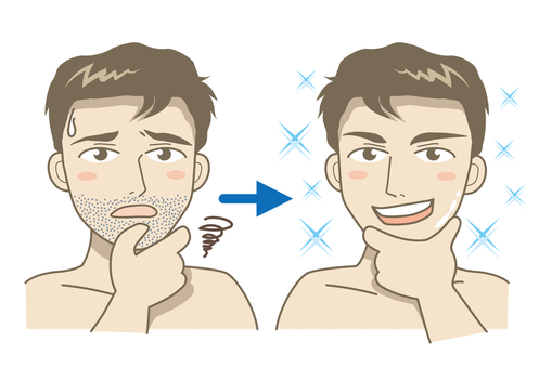 Behind shaving · Before after A