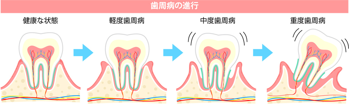 Progression of periodontal disease