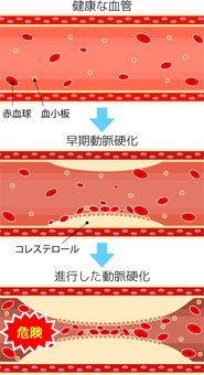 Progression of arteriosclerosis