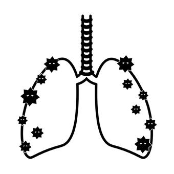 폐렴 폐 코로나 염증 증상 질병