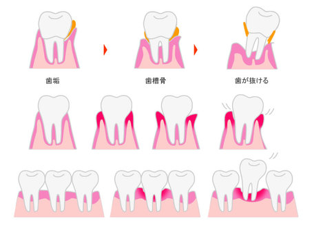 Tooth and periodontal disease