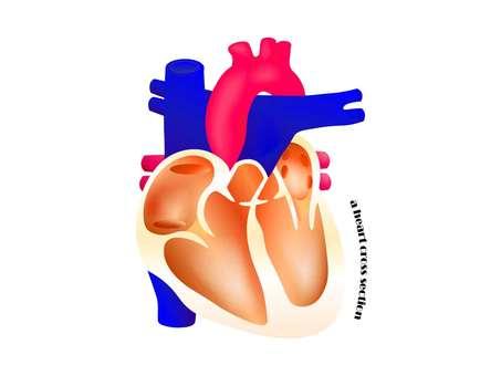 Cardiac cross section