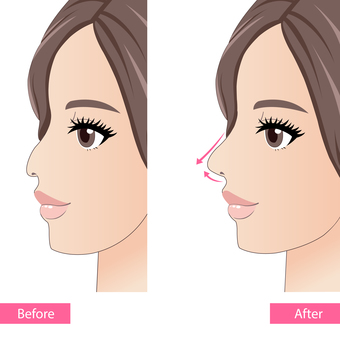 Nose shaping before and after