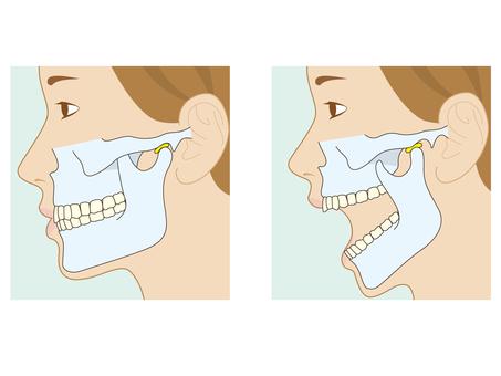 歯の噛み合わせと顎関節