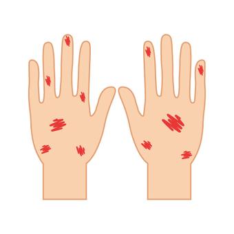 부상 (손등 · 거칠어 진 손 · 찰과상)