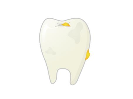 더러운 치아